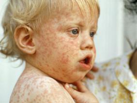 measles_4x3
